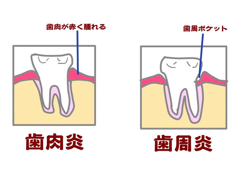 歯周病+妊娠.png