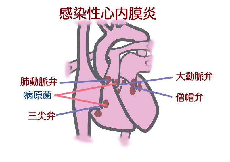 虫歯+心臓病.png