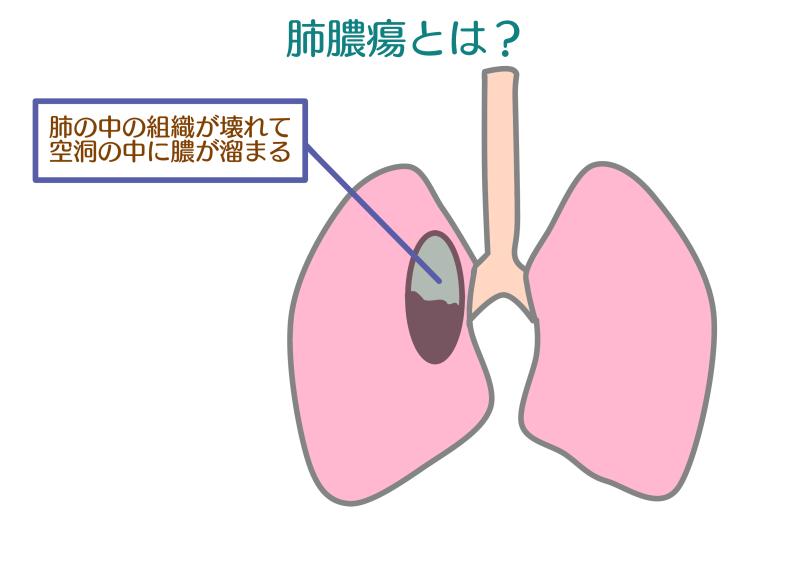 虫歯+肺の画像.png