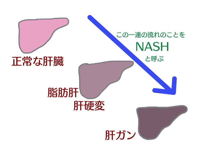 NASH 画像.png