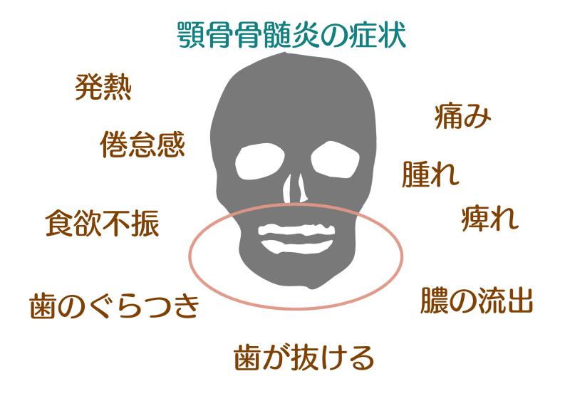 顎骨骨髄炎 画像.png
