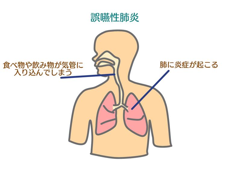 誤嚥性肺炎.png