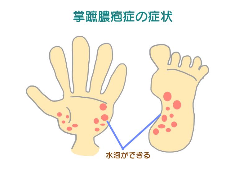 掌蹠膿疱症.png