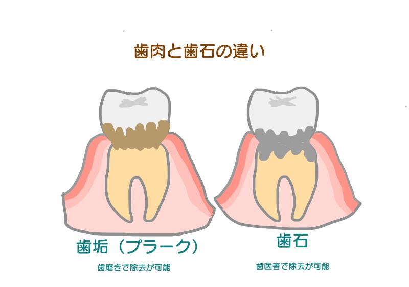 歯垢と歯石の違い.png