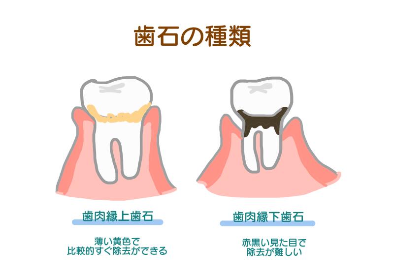 歯石の種類.png