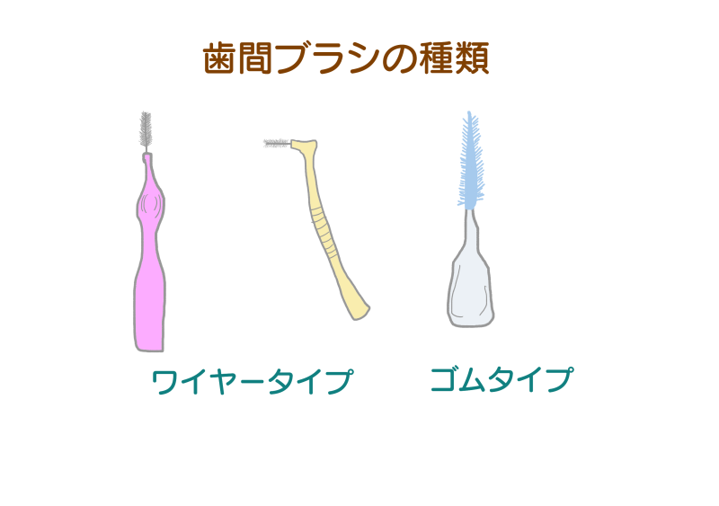 歯間ブラシの種類.png