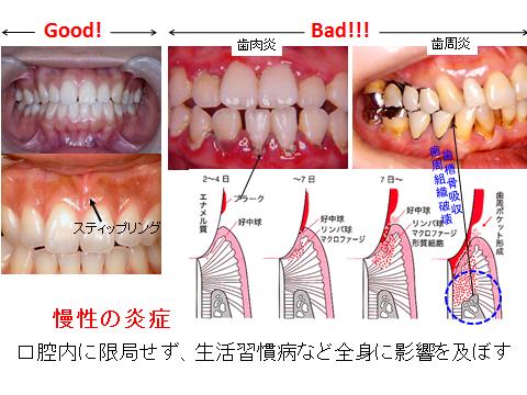歯肉炎・歯周病.png
